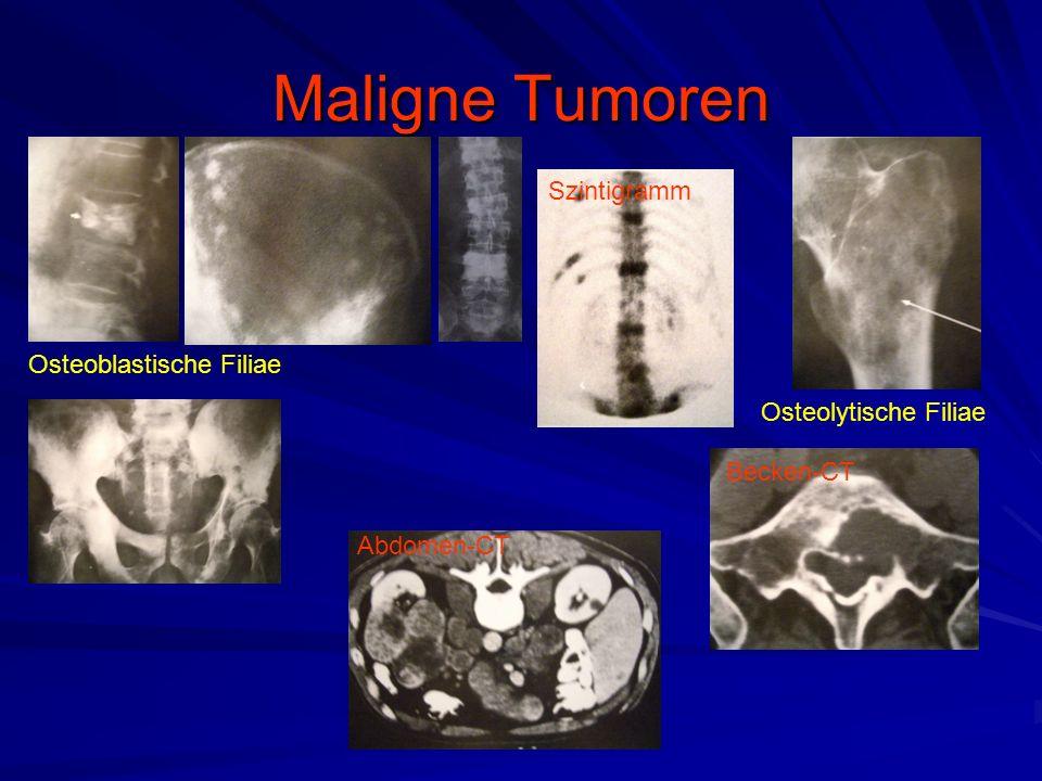 Maligne Tumoren Osteoblastische Filiae Osteolytische Filiae Szintigramm Abdomen-CT Becken-CT