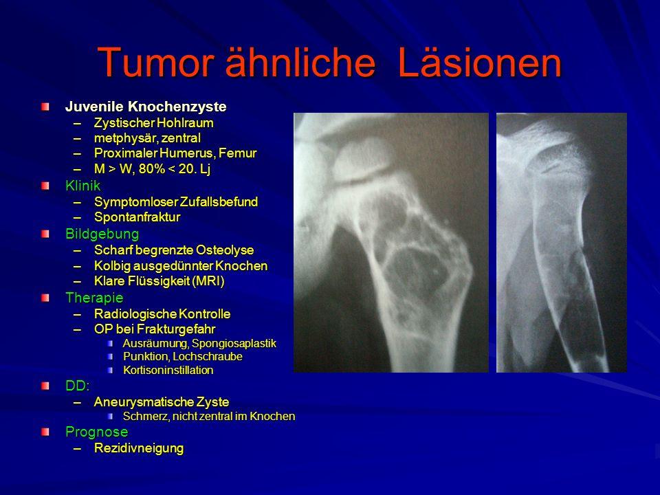 Tumor ähnliche Läsionen Juvenile Knochenzyste –Zystischer Hohlraum –metphysär, zentral –Proximaler Humerus, Femur –M > W, 80% W, 80% < 20.