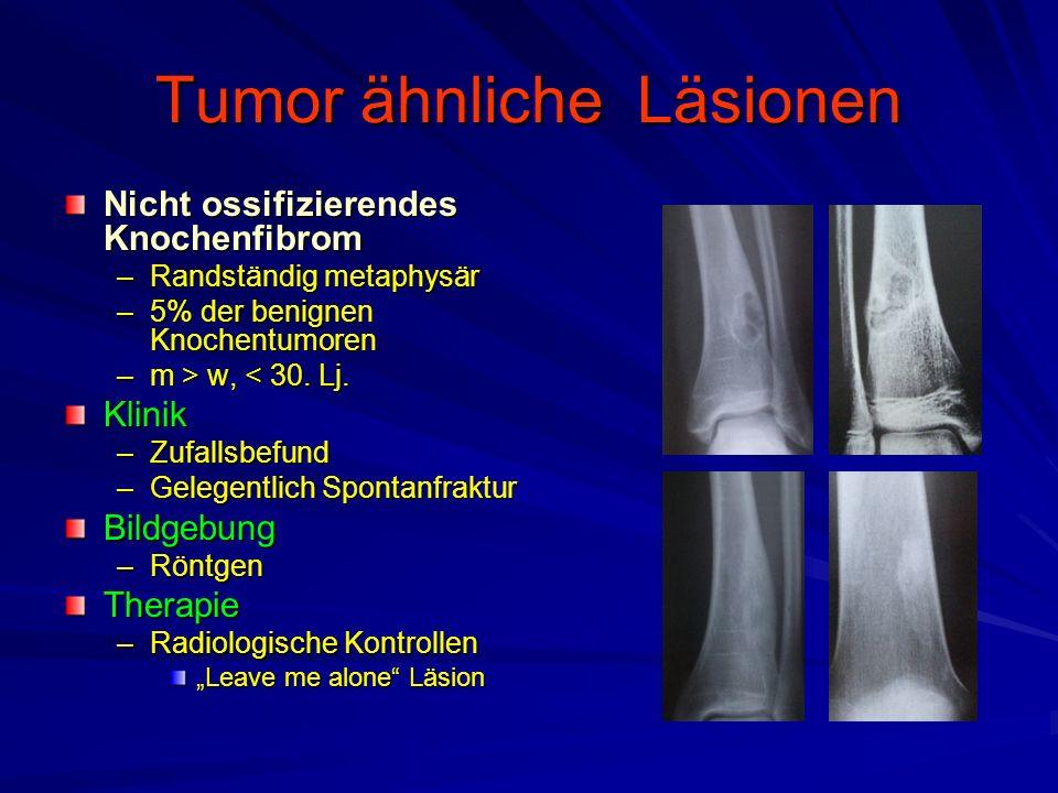Tumor ähnliche Läsionen Nicht ossifizierendes Knochenfibrom –Randständig metaphysär –5% der benignen Knochentumoren –m > w, w, < 30.