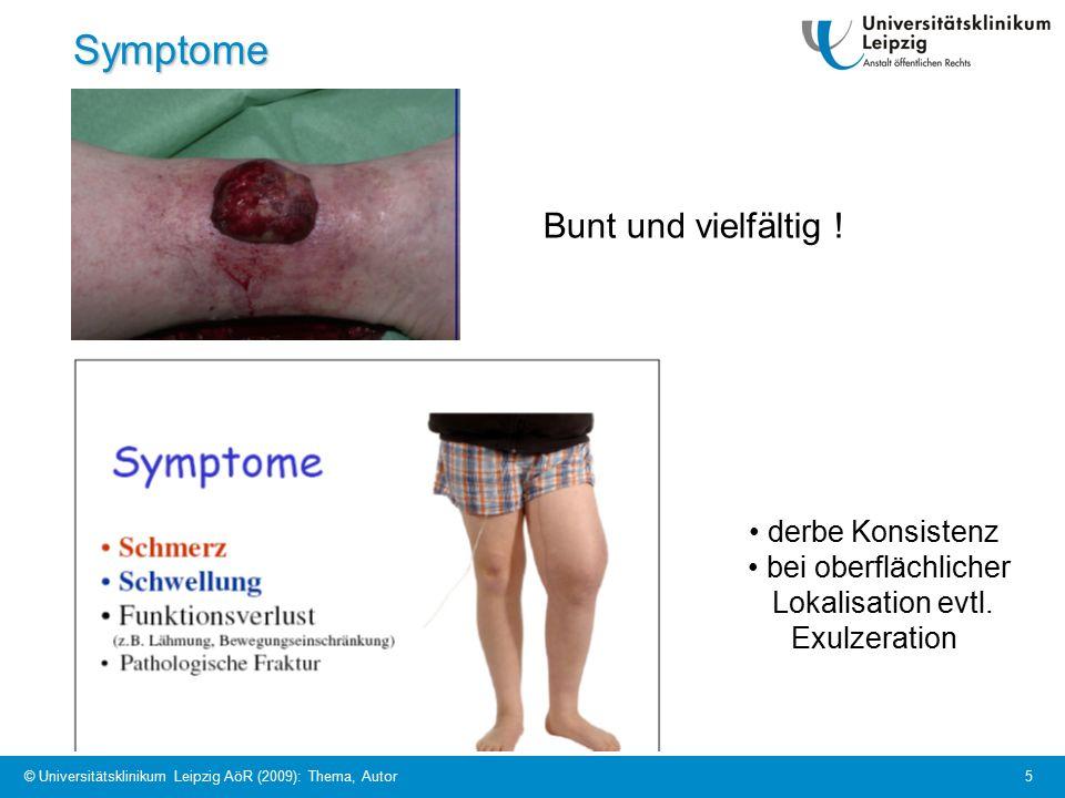 © Universitätsklinikum Leipzig AöR (2009): Thema, Autor 5Symptome Bunt und vielfältig .