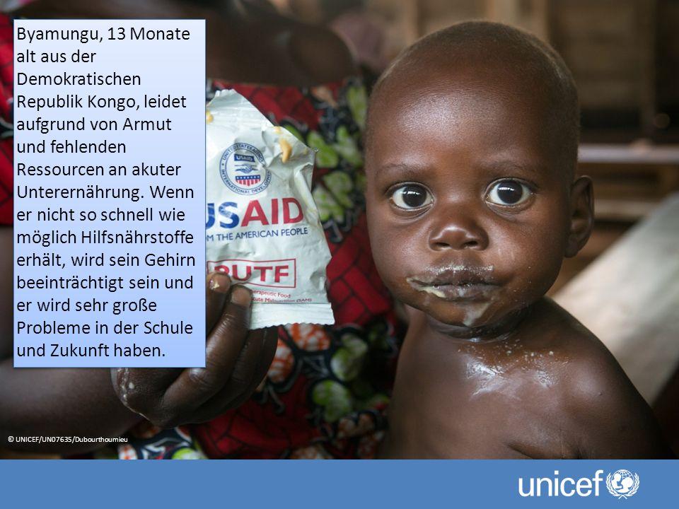 Byamungu, 13 Monate alt aus der Demokratischen Republik Kongo, leidet aufgrund von Armut und fehlenden Ressourcen an akuter Unterernährung.