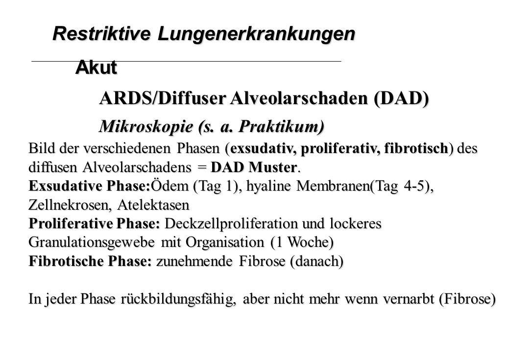 Restriktive Lungenerkrankungen Akut ARDS/Diffuser Alveolarschaden (DAD) Mikroskopie (s. a. Praktikum) Bild der verschiedenen Phasen (exsudativ, prolif