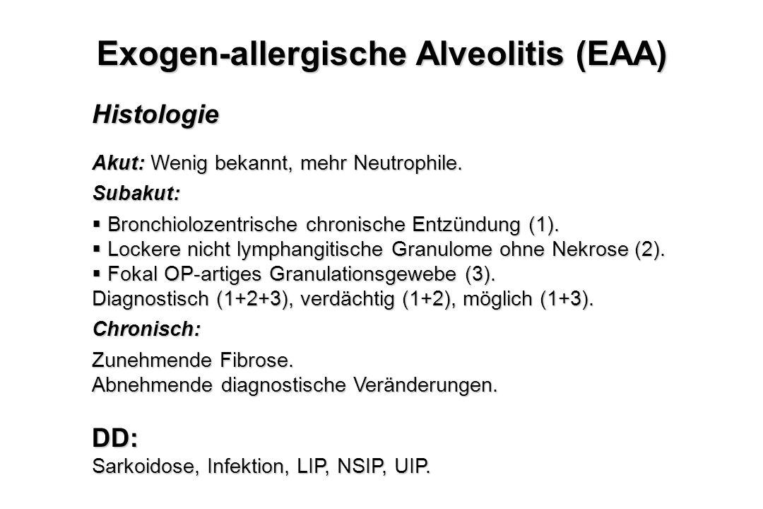 Histologie Akut: Wenig bekannt, mehr Neutrophile. Subakut:  Bronchiolozentrische chronische Entzündung (1).  Lockere nicht lymphangitische Granulome