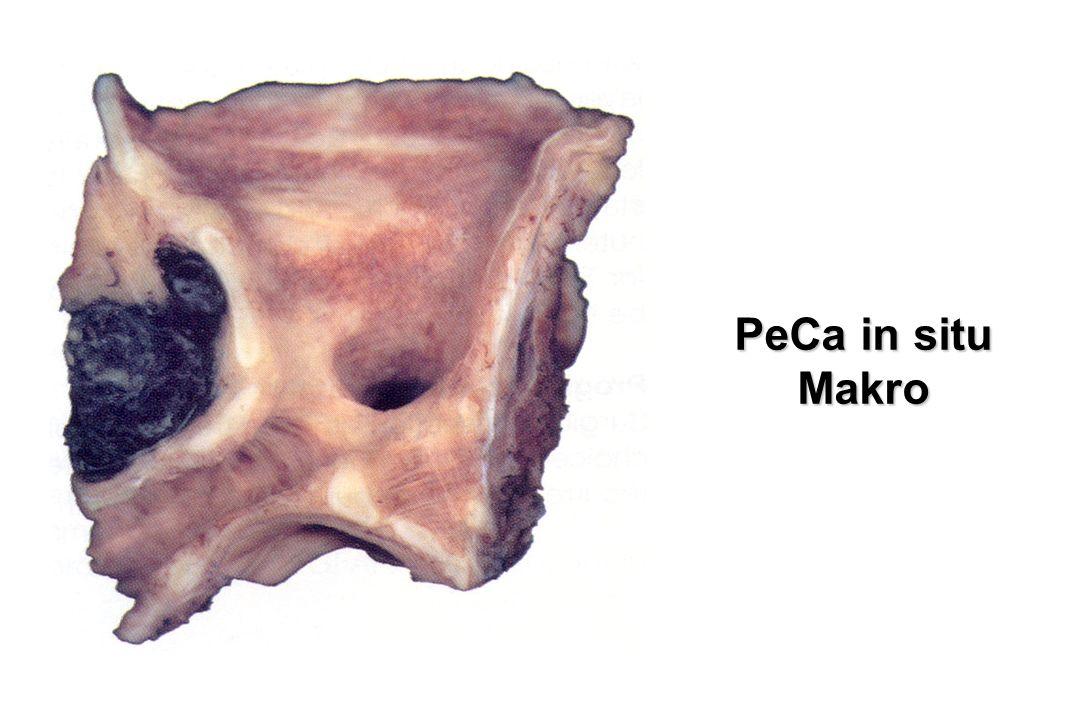 PeCa in situ Makro