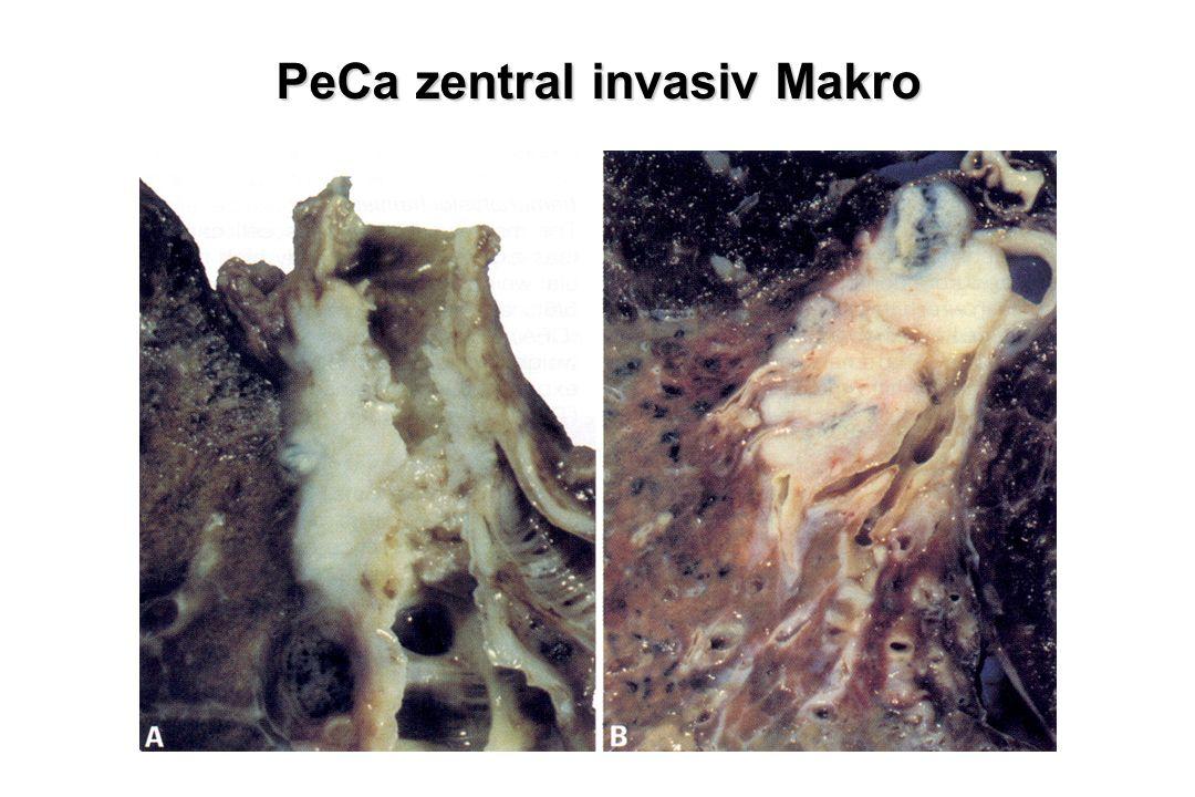PeCa zentral invasiv Makro