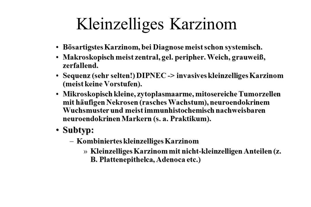 Kleinzelliges Karzinom Bösartigstes Karzinom, bei Diagnose meist schon systemisch.Bösartigstes Karzinom, bei Diagnose meist schon systemisch. Makrosko