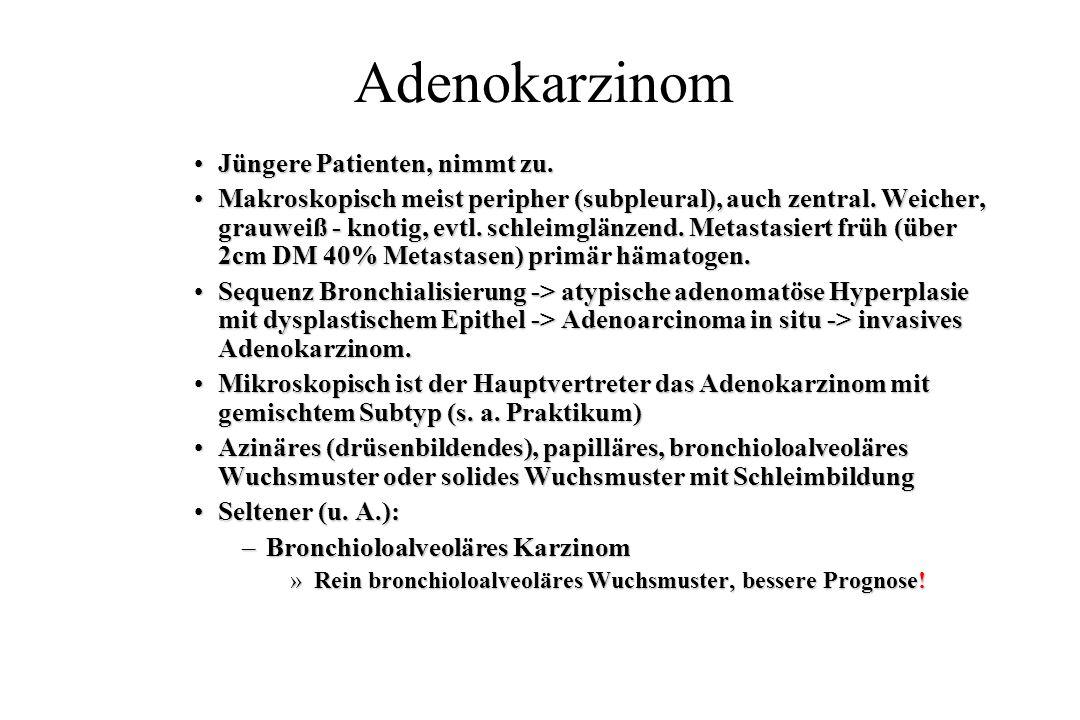 Adenokarzinom Jüngere Patienten, nimmt zu.Jüngere Patienten, nimmt zu. Makroskopisch meist peripher (subpleural), auch zentral. Weicher, grauweiß - kn