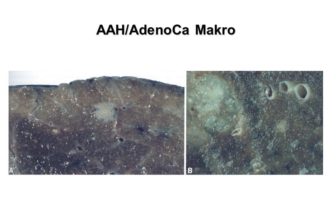 AAH/AdenoCa Makro