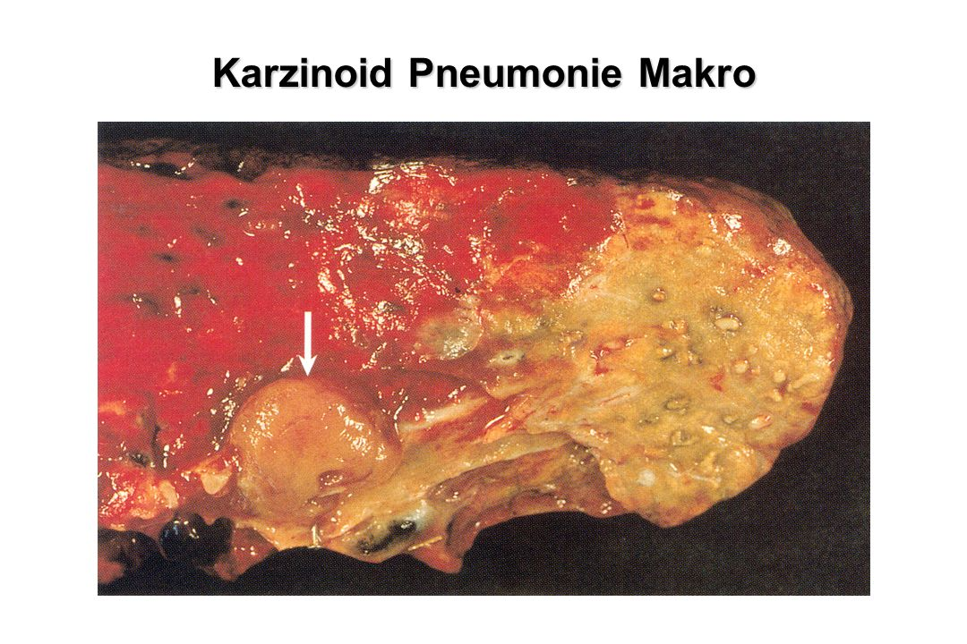 Karzinoid Pneumonie Makro