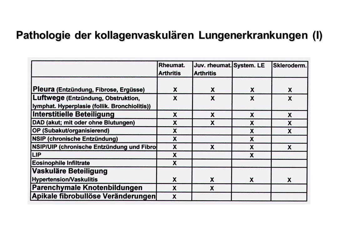 Pathologie der kollagenvaskulären Lungenerkrankungen (I)