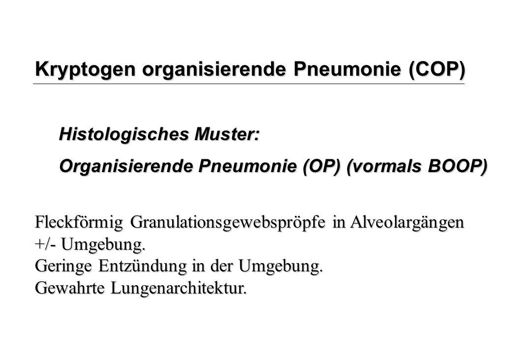 Kryptogen organisierende Pneumonie (COP) Histologisches Muster: Organisierende Pneumonie (OP) (vormals BOOP) Fleckförmig Granulationsgewebspröpfe in A