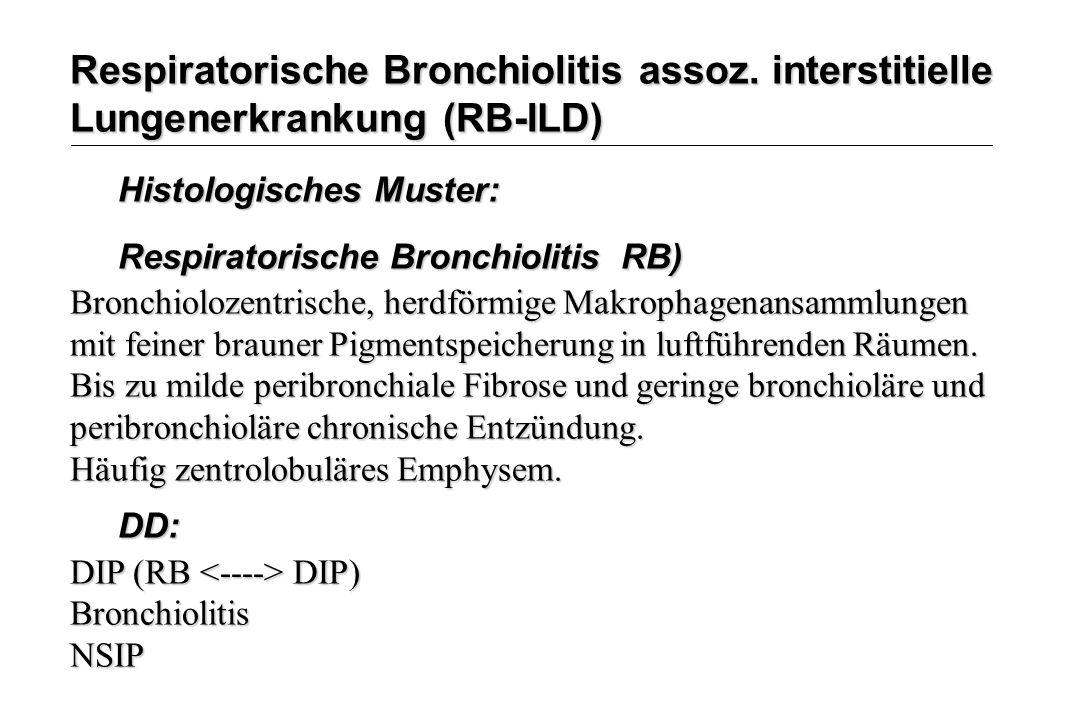 Respiratorische Bronchiolitis assoz. interstitielle Lungenerkrankung (RB-ILD) Histologisches Muster: Respiratorische Bronchiolitis RB) Bronchiolozentr