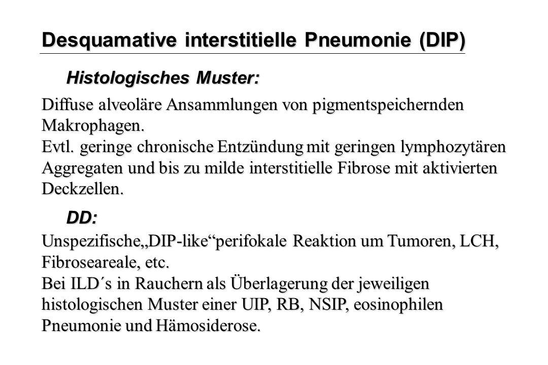 Desquamative interstitielle Pneumonie (DIP) Histologisches Muster: Diffuse alveoläre Ansammlungen von pigmentspeichernden Makrophagen. Evtl. geringe c