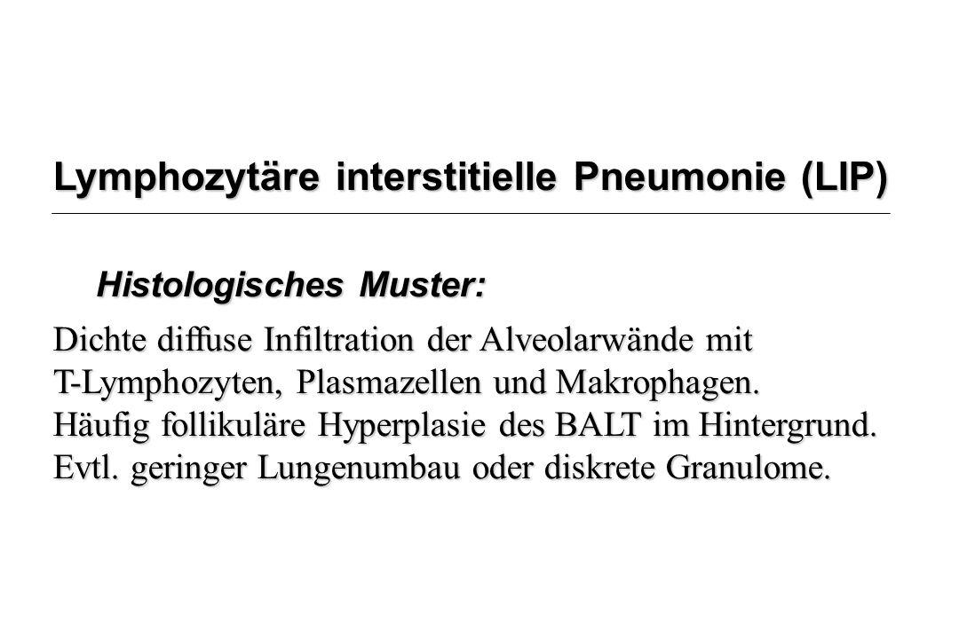 Lymphozytäre interstitielle Pneumonie (LIP) Histologisches Muster: Dichte diffuse Infiltration der Alveolarwände mit T-Lymphozyten, Plasmazellen und M