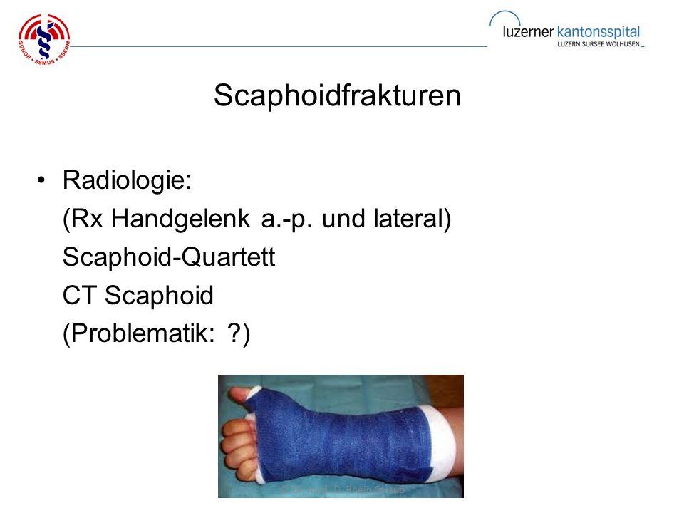 Scaphoidfrakturen Radiologie: (Rx Handgelenk a.-p.