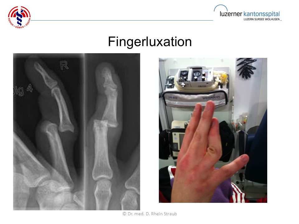 Fingerluxation © Dr. med. D. Rhein Straub