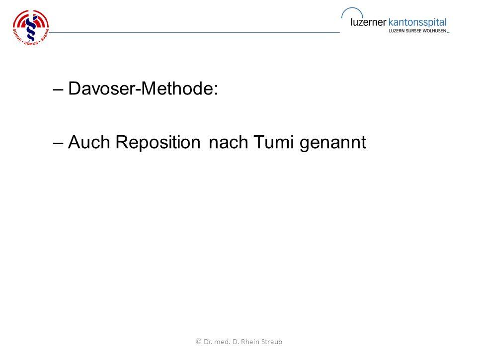 –Davoser-Methode: –Auch Reposition nach Tumi genannt © Dr. med. D. Rhein Straub