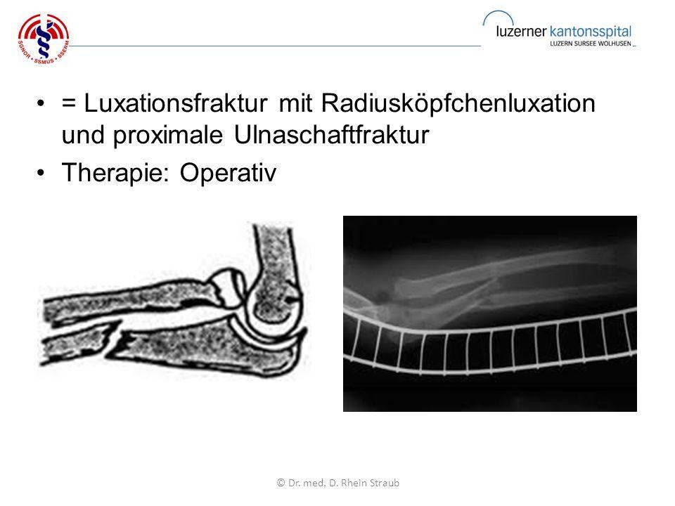 = Luxationsfraktur mit Radiusköpfchenluxation und proximale Ulnaschaftfraktur Therapie: Operativ © Dr.