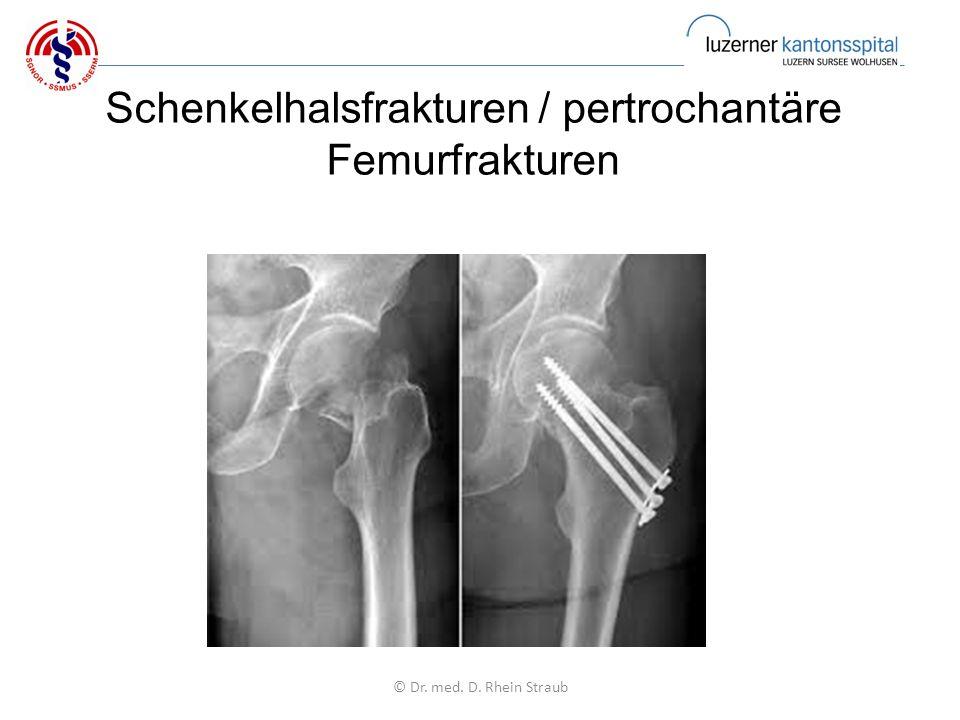 Schenkelhalsfrakturen / pertrochantäre Femurfrakturen © Dr. med. D. Rhein Straub