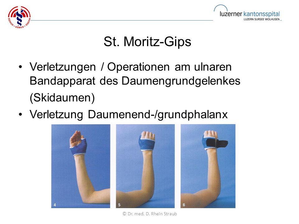 St. Moritz-Gips Verletzungen / Operationen am ulnaren Bandapparat des Daumengrundgelenkes (Skidaumen) Verletzung Daumenend-/grundphalanx © Dr. med. D.