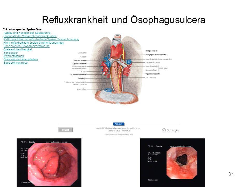 21 Refluxkrankheit und Ösophagusulcera Erkrankungen der Speiseröhre Aufbau und Funktion der Speiseröhre Diagnostik der Speiseröhrenerkrankungen Reflux