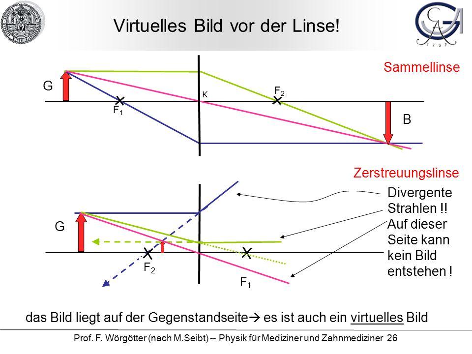 Prof. F. Wörgötter (nach M.Seibt) -- Physik für Mediziner und Zahnmediziner 26 Virtuelles Bild vor der Linse! das Bild liegt auf der Gegenstandseite 