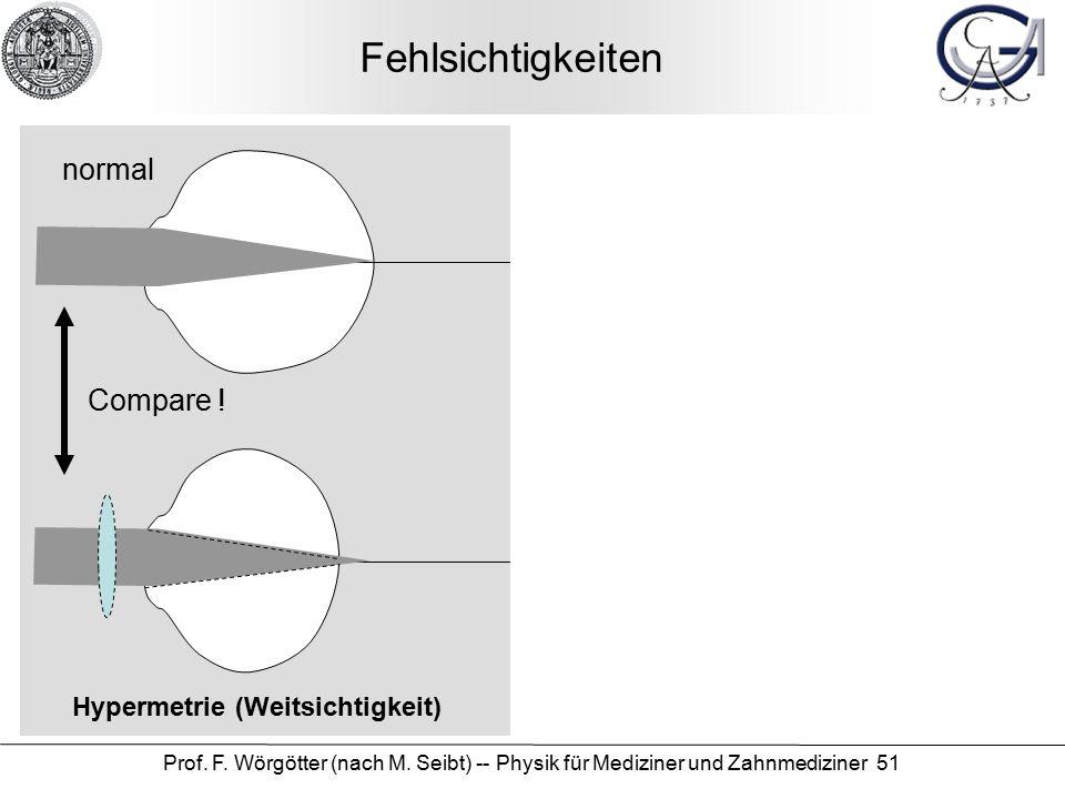 Prof. F. Wörgötter (nach M. Seibt) -- Physik für Mediziner und Zahnmediziner 51 Fehlsichtigkeiten Myopie (Kurzsichtigkeit) Hypermetrie (Weitsichtigkei