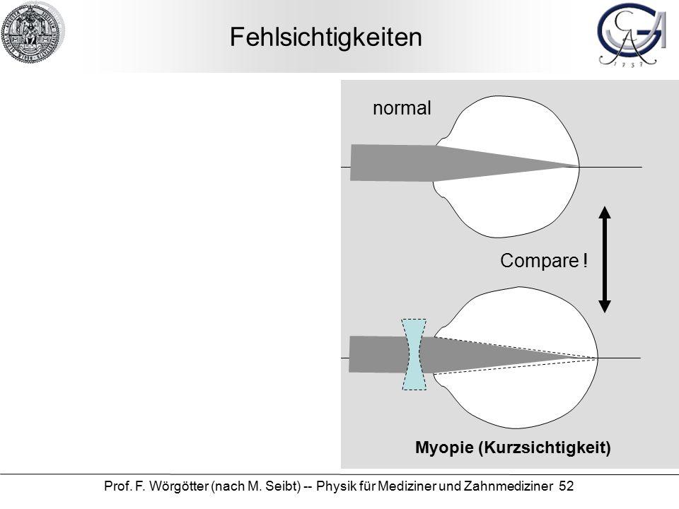 Prof. F. Wörgötter (nach M. Seibt) -- Physik für Mediziner und Zahnmediziner 52 Fehlsichtigkeiten Myopie (Kurzsichtigkeit) Hypermetrie (Weitsichtigkei