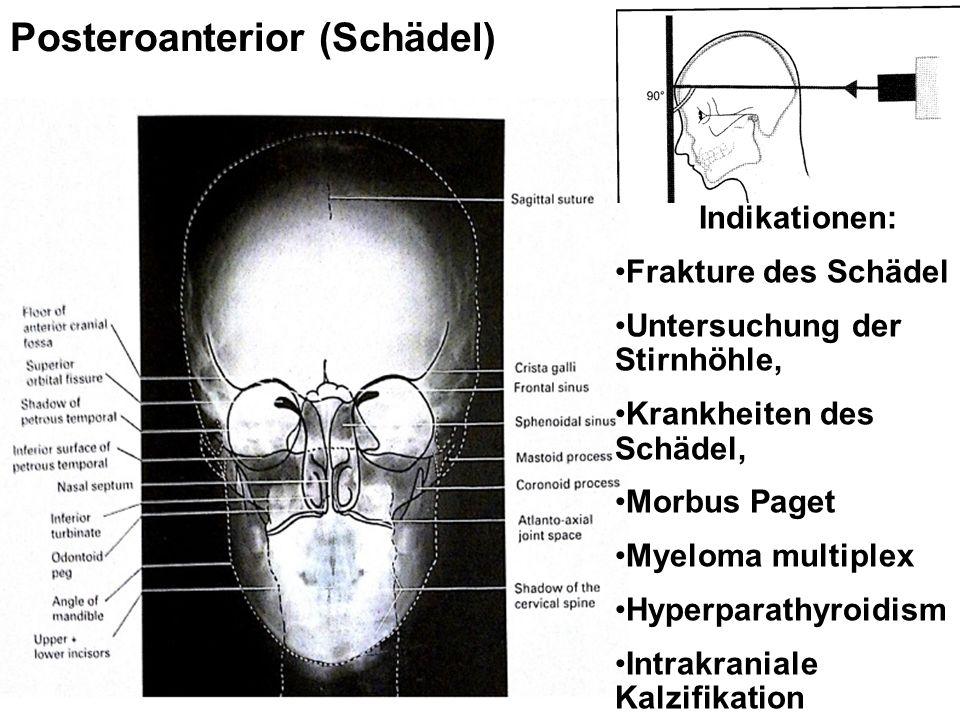 Posteroanterior (Schädel) Indikationen: Frakture des Schädel Untersuchung der Stirnhöhle, Krankheiten des Schädel, Morbus Paget Myeloma multiplex Hyperparathyroidism Intrakraniale Kalzifikation