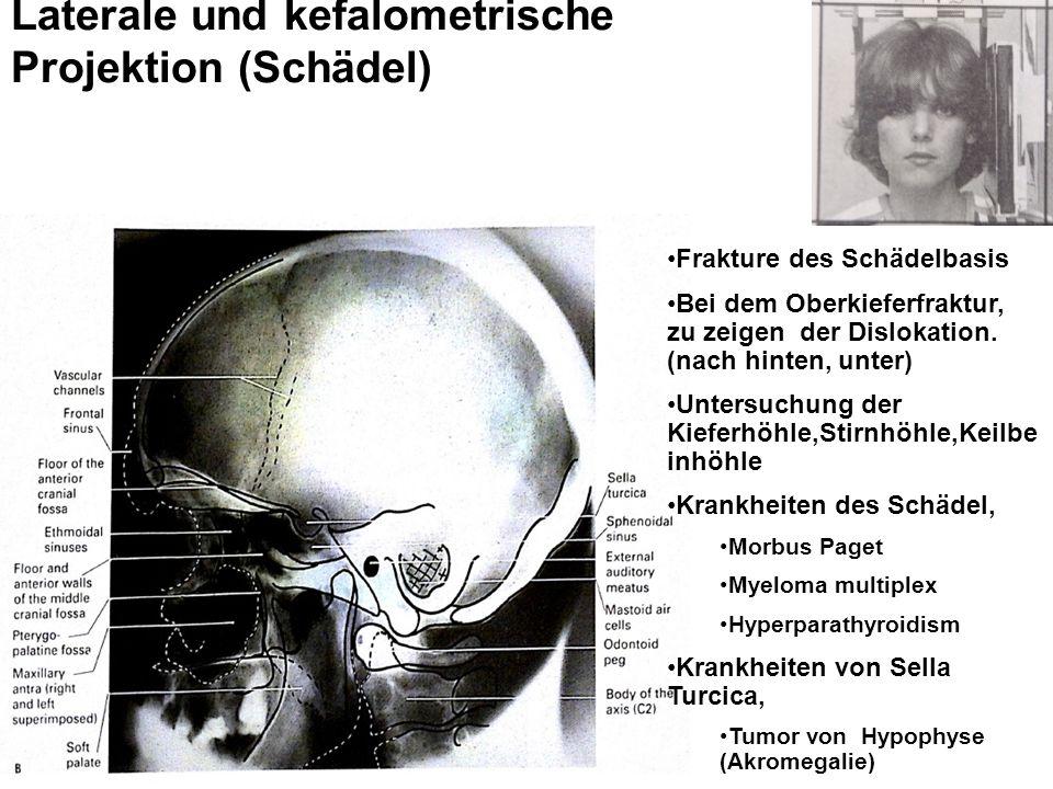 Laterale und kefalometrische Projektion (Schädel) Frakture des Schädelbasis Bei dem Oberkieferfraktur, zu zeigen der Dislokation.