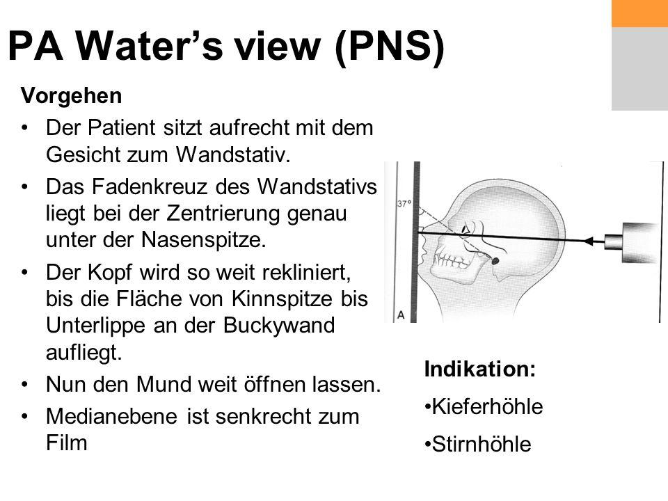 PA Water's view (PNS) Vorgehen Der Patient sitzt aufrecht mit dem Gesicht zum Wandstativ.