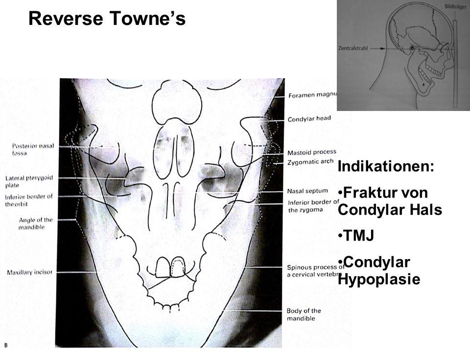 Reverse Towne's Indikationen: Fraktur von Condylar Hals TMJ Condylar Hypoplasie