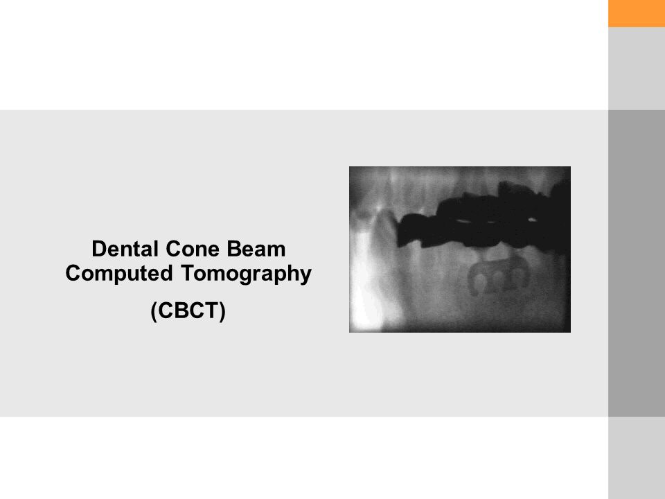 Dental Cone Beam Computed Tomography (CBCT)