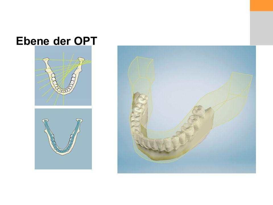 Ebene der OPT