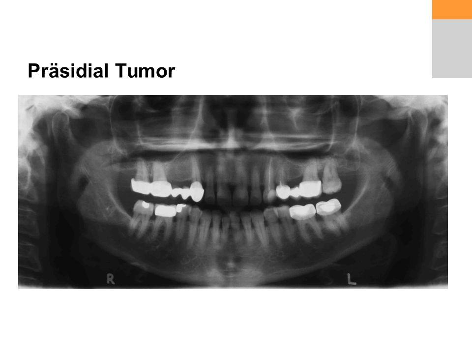 Präsidial Tumor
