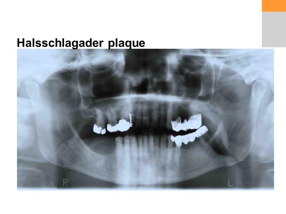 Halsschlagader plaque