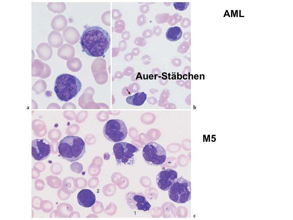 Auer-Stäbchen M5 AML
