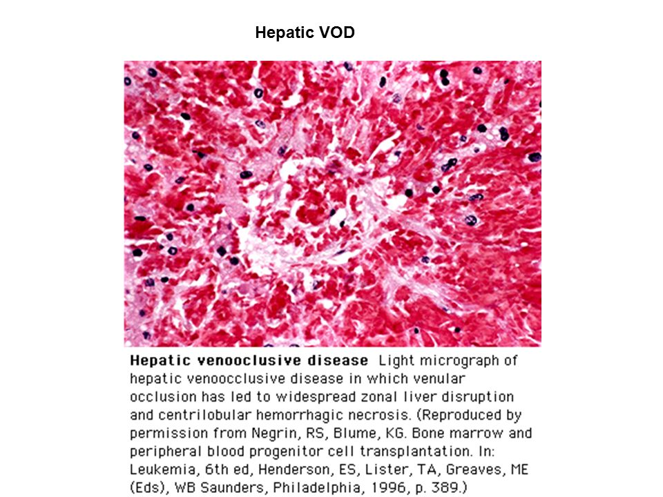 Hepatic VOD