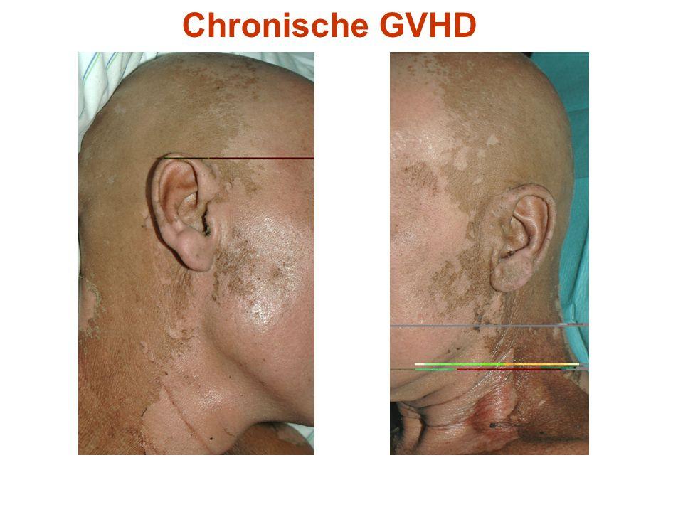 Chronische GVHD