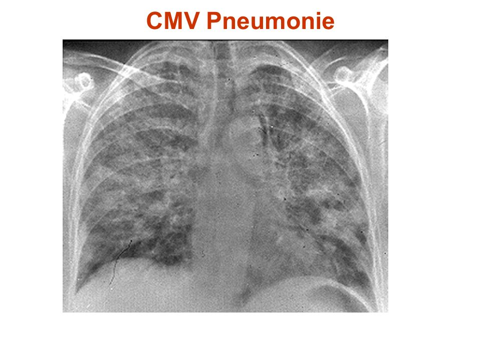 CMV Pneumonie