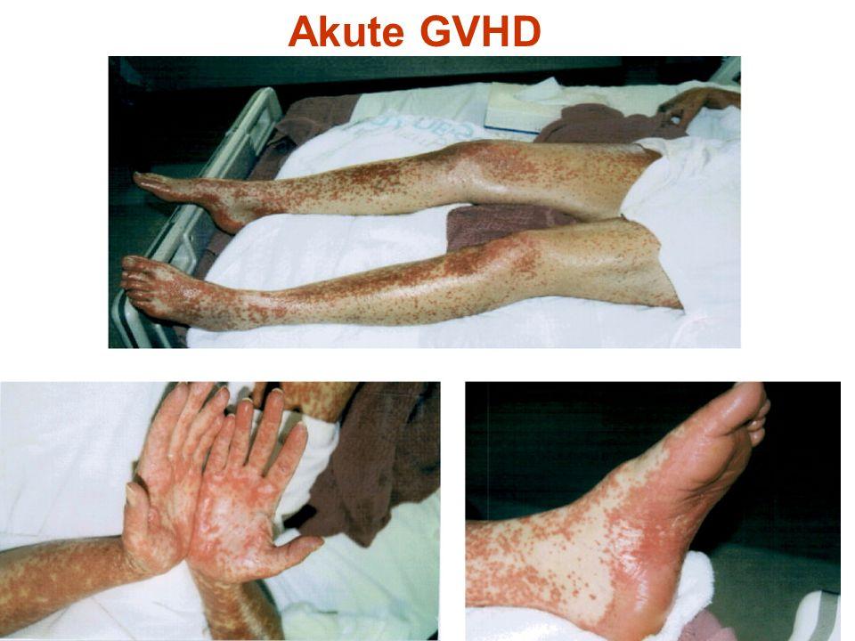 Akute GVHD