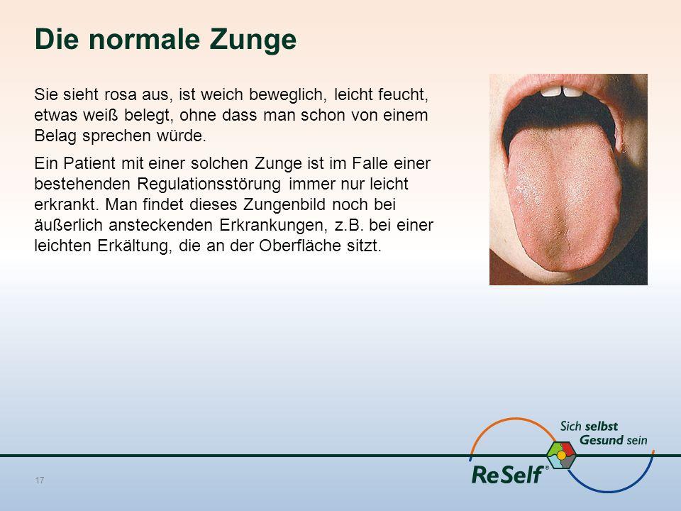 Die normale Zunge Sie sieht rosa aus, ist weich beweglich, leicht feucht, etwas weiß belegt, ohne dass man schon von einem Belag sprechen würde.
