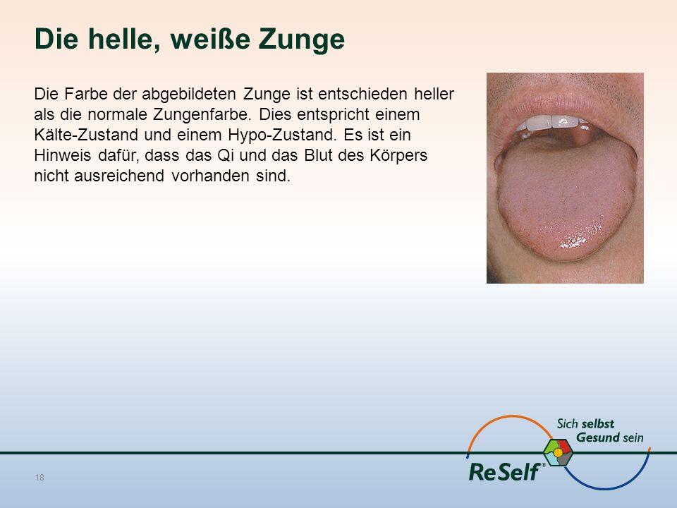 Die helle, weiße Zunge Die Farbe der abgebildeten Zunge ist entschieden heller als die normale Zungenfarbe. Dies entspricht einem Kälte-Zustand und ei