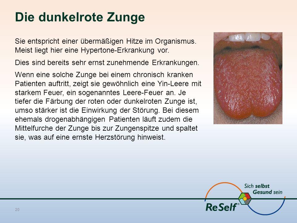 Die dunkelrote Zunge Sie entspricht einer übermäßigen Hitze im Organismus. Meist liegt hier eine Hypertone-Erkrankung vor. Dies sind bereits sehr erns
