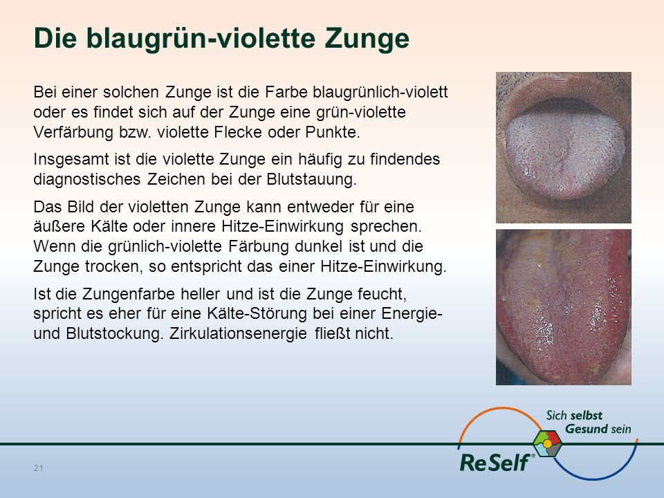 Die blaugrün-violette Zunge Bei einer solchen Zunge ist die Farbe blaugrünlich-violett oder es findet sich auf der Zunge eine grün-violette Verfärbung bzw.