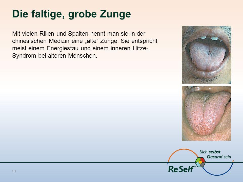"""Die faltige, grobe Zunge Mit vielen Rillen und Spalten nennt man sie in der chinesischen Medizin eine """"alte"""" Zunge. Sie entspricht meist einem Energie"""