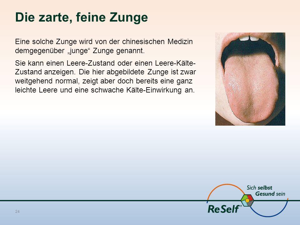 """Die zarte, feine Zunge Eine solche Zunge wird von der chinesischen Medizin demgegenüber """"junge"""" Zunge genannt. Sie kann einen Leere-Zustand oder einen"""