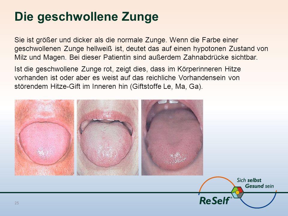 Die geschwollene Zunge Sie ist größer und dicker als die normale Zunge. Wenn die Farbe einer geschwollenen Zunge hellweiß ist, deutet das auf einen hy