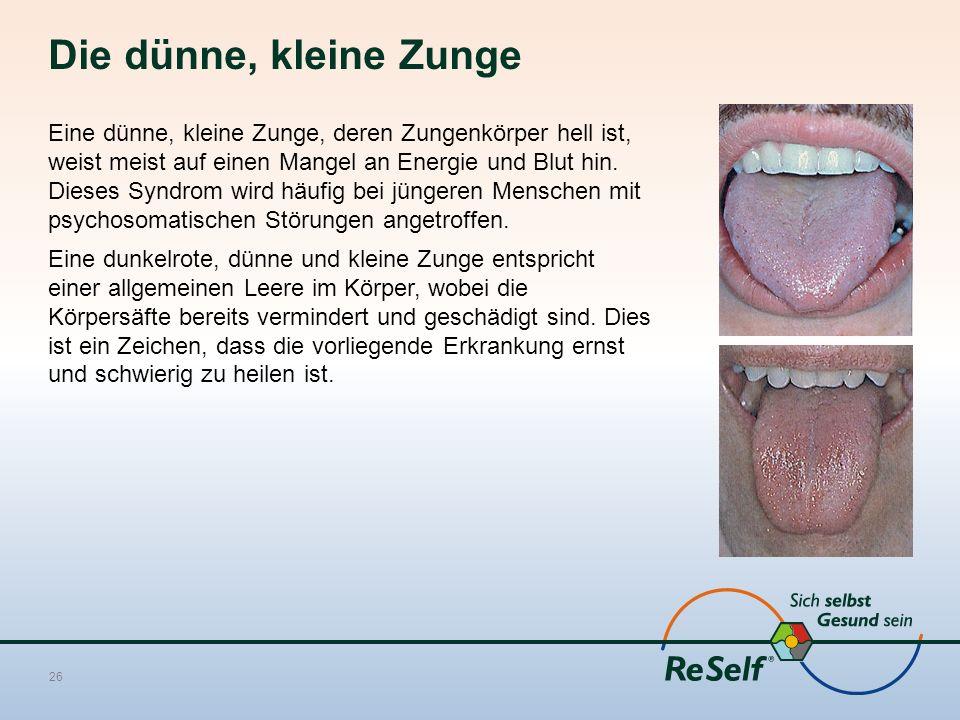 Die dünne, kleine Zunge Eine dünne, kleine Zunge, deren Zungenkörper hell ist, weist meist auf einen Mangel an Energie und Blut hin. Dieses Syndrom wi