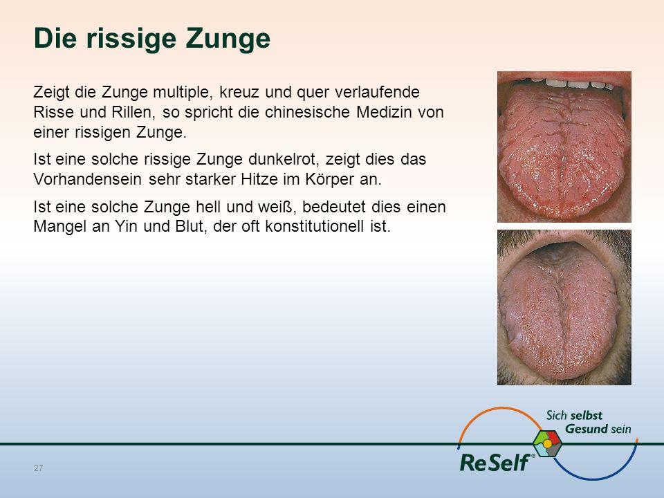 Die rissige Zunge Zeigt die Zunge multiple, kreuz und quer verlaufende Risse und Rillen, so spricht die chinesische Medizin von einer rissigen Zunge.